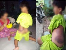 Vụ bé trai tật nguyền bị cô giáo đánh bầm tím người: Cô giáo đến nhà xin lỗi