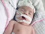 Mẹ Việt khóc cạn nước mắt khi nằm trên bàn mổ, bác sĩ thông báo con bị gãy 2 tay dù siêu âm bình thường
