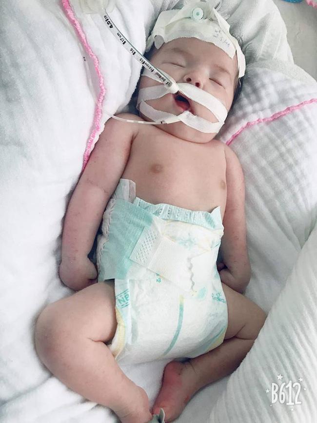 Mẹ Việt khóc cạn nước mắt khi nằm trên bàn mổ, bác sĩ thông báo con bị gãy 2 tay dù siêu âm bình thường-3