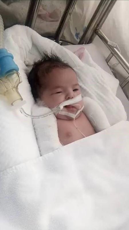 Mẹ Việt khóc cạn nước mắt khi nằm trên bàn mổ, bác sĩ thông báo con bị gãy 2 tay dù siêu âm bình thường-1