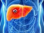5 nhóm người rất dễ bị bệnh ung thư gan tấn công: Khi phát hiện bệnh thường đã quá muộn-6