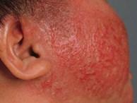 Bấn loạn khi da con đỏ như 'tôm luộc' vì viêm da cơ địa, làm gì để con hết ngứa?