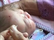 Bác sĩ nói gì về việc dùng kim châm vào đầu trẻ sơ sinh cho chảy máu để con ăn khỏe, nhanh lớn