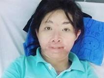 Sau 700 ngày bị chồng tẩm xăng đốt, người mẹ từng rất xinh đẹp đếm ngược để được gặp con