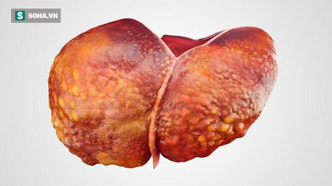 5 nhóm người rất dễ bị bệnh ung thư gan tấn công: Khi phát hiện bệnh thường đã quá muộn-2