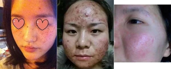 Hãi hùng với làn da lở loét vì sử dụng mặt nạ giấy, tất cả cũng chỉ tại ham rẻ-4