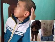 Gia cảnh khốn khó của bé trai 10 tuổi bị sư trụ trì đánh bầm tím khắp cơ thể