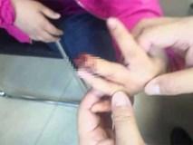 Bé gái 9 tuổi phải cưa ngón tay vì cách sơ cứu sai lầm của bà nội sau khi bị kẹt tay vào cửa