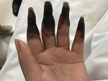 Dọn nhà, người phụ nữ bị hoại tử 8 ngón tay đen sì: Triệu chứng bất thường mọi người phải hết sức cảnh giác