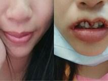Hình ảnh gây sốc hội chị em: Cô gái định làm môi trái tim căng mọng, ai ngờ cắt lỗi môi hở răng lạnh
