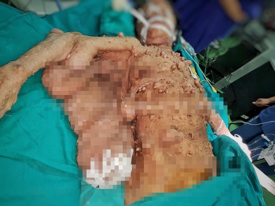 Phẫu thuật cứu người phụ nữ có hàng trăm khối u xõa như cánh đại bàng-1