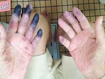 Ngón tay và ngón chân của người ông này bỗng chuyển sang màu đen sì - dấu hiệu cảnh báo bệnh nguy hiểm