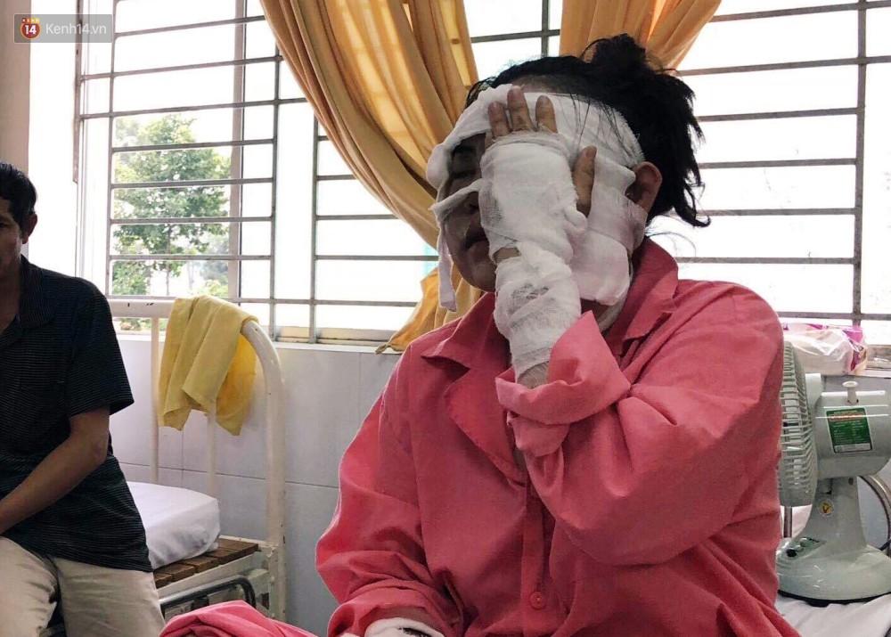 """Cô gái sắp cưới bị tạt axit hỏng 2 mắt ở Sài Gòn: Tôi đau đớn lắm, có thể đám cưới sẽ phải dời lại để lo chữa trị""""-1"""