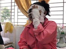 """Cô gái sắp cưới bị tạt axit hỏng 2 mắt ở Sài Gòn: """"Tôi đau đớn lắm, có thể đám cưới sẽ phải dời lại để lo chữa trị"""""""
