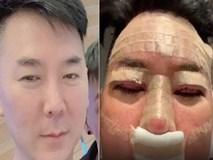 Nhà tạo mẫu tóc nổi tiếng lên tiếng cảnh báo mọi người sau khi sang Hàn Quốc phẫu thuật thẩm mỹ hỏng