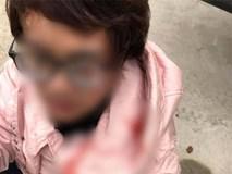 Thắc mắc tiền vé xe khách tăng thêm 100 nghìn, người phụ nữ bị túm tóc đập đầu đến chảy máu: Tài xế lên tiếng