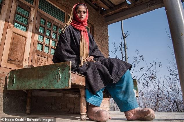 Bàn chân sưng to gấp 3 lần vì nhiễm giun sán khiến cô gái 21 tuổi có khả năng mất cả tương lai-1