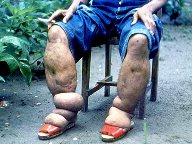 Bàn chân sưng to gấp 3 lần vì nhiễm giun sán khiến cô gái 21 tuổi có khả năng mất cả tương lai-4