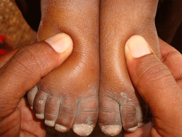 Bàn chân sưng to gấp 3 lần vì nhiễm giun sán khiến cô gái 21 tuổi có khả năng mất cả tương lai-5