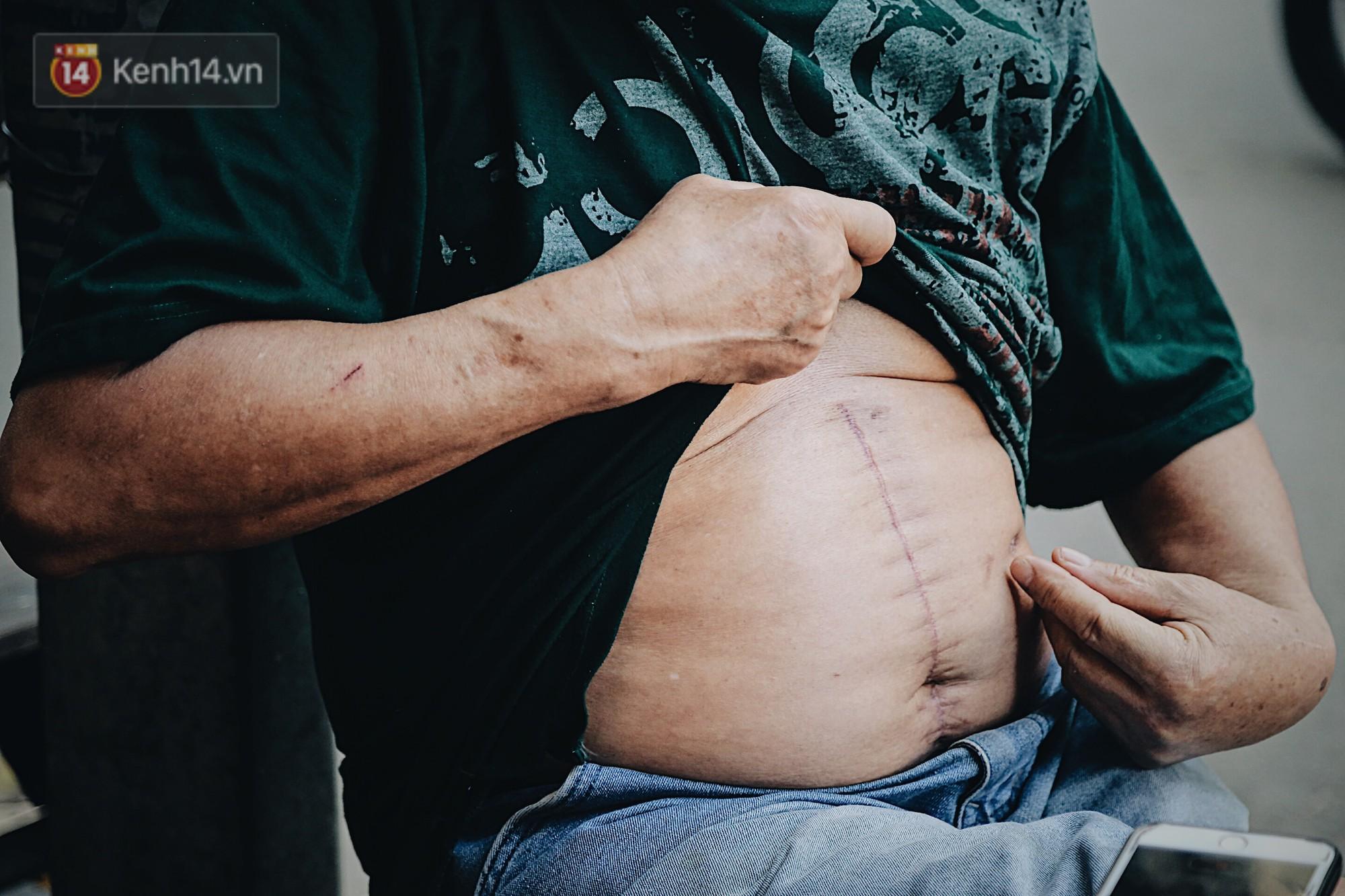 Câu chuyện về vết sẹo dài trên cơ thể người kéo chuông cuối cùng ở Nhà thờ lớn Hà Nội-8