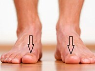 Bàn chân xuất hiện cùng lúc 3 dấu hiệu này: Hãy cảnh giác vì có thể thận đang có bệnh