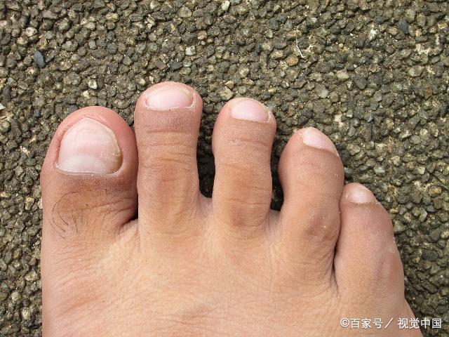 Bàn chân xuất hiện cùng lúc 3 dấu hiệu này: Hãy cảnh giác vì có thể thận đang có bệnh-3