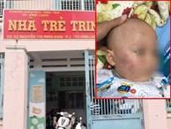 Vĩnh Long: Bé trai 19 tháng tuổi bị bảo mẫu tát liên tục vào mặt, phải nhập viện điều trị