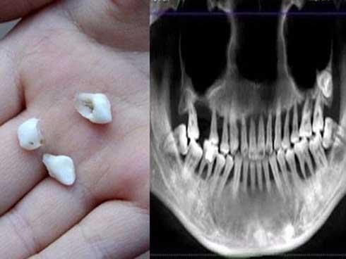 Cô gái 28 tuổi rụng răng, móm mém như cụ bà 80 vì thói quen xấu-1