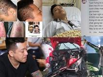 Loạt 'tai nạn' khiến Tuấn Hưng thành sao Việt gặp 'vận đen' nhất 2018