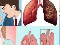 Bạn có mắc triệu chứng này của ung thư phổi?
