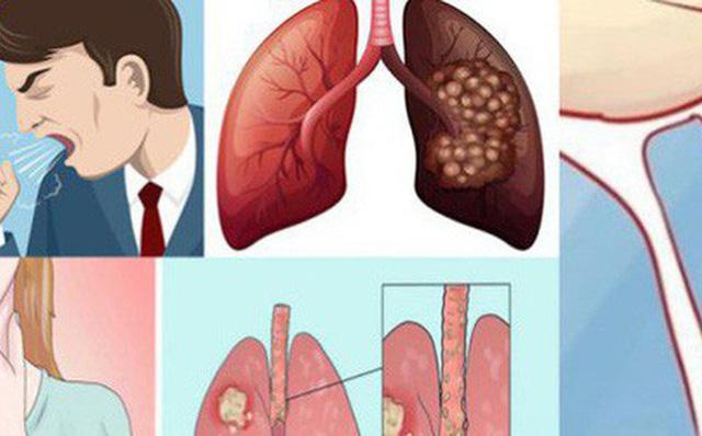 Bạn có mắc triệu chứng này của ung thư phổi?-1