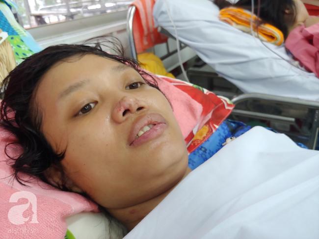 Mẹ mới sinh phải cắt cụt tứ chi sau khi bị áp xe vú: Bác sĩ sản khoa tiết lộ thông tin bất ngờ-1