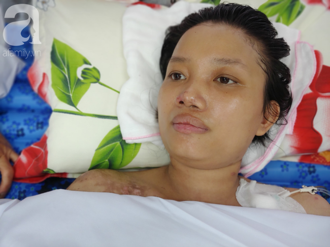 Mẹ mới sinh phải cắt cụt tứ chi sau khi bị áp xe vú: Bác sĩ sản khoa tiết lộ thông tin bất ngờ-9