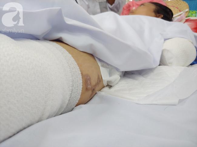 Mẹ mới sinh phải cắt cụt tứ chi sau khi bị áp xe vú: Bác sĩ sản khoa tiết lộ thông tin bất ngờ-6