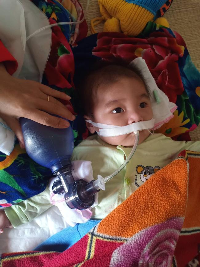 """Ánh mắt cầu cứu của bé trai 8 tháng sống phụ thuộc vào máy thở: Nếu ngừng bóp bình oxy con tôi sẽ ngưng thở""""-1"""