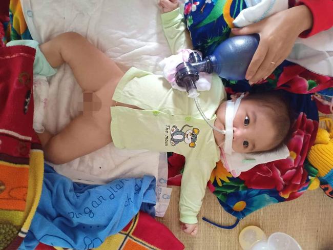 """Ánh mắt cầu cứu của bé trai 8 tháng sống phụ thuộc vào máy thở: Nếu ngừng bóp bình oxy con tôi sẽ ngưng thở""""-2"""