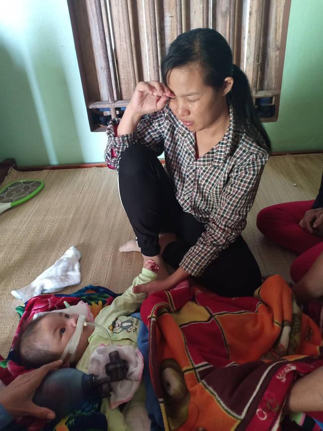 """Ánh mắt cầu cứu của bé trai 8 tháng sống phụ thuộc vào máy thở: Nếu ngừng bóp bình oxy con tôi sẽ ngưng thở""""-7"""