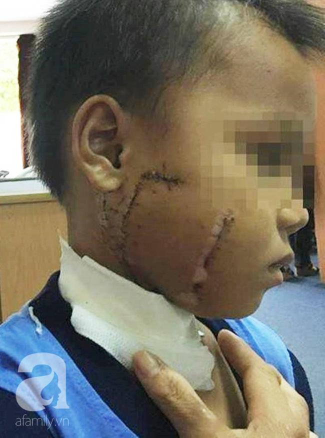 Thương tâm: Mẹ chở con không đội nón bảo hiểm, nhiều trẻ bị tai nạn cực nặng đến biến dạng mặt-4
