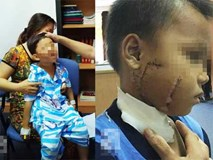 Thương tâm: Mẹ chở con không đội nón bảo hiểm, nhiều trẻ bị tai nạn cực nặng đến biến dạng mặt
