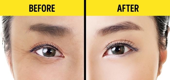 1 phút thực hiện phương pháp này của Nhật Bản, mắt gấu trúc nhăn nheo sẽ trẻ đẹp tức thì-1