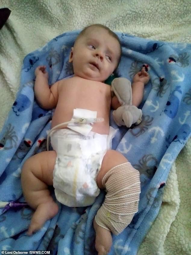 Đi siêu âm thấy xương con bị gãy, cha mẹ không ngờ đến điều khủng khiếp này xảy đến khi con chào đời-1