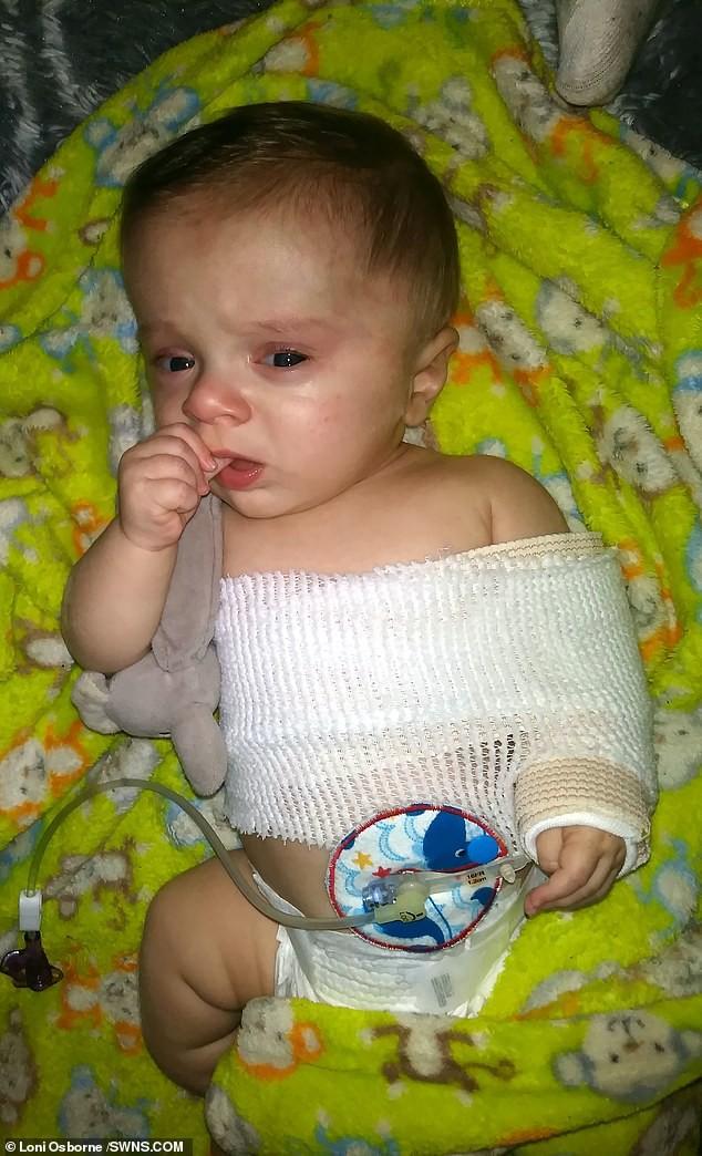 Đi siêu âm thấy xương con bị gãy, cha mẹ không ngờ đến điều khủng khiếp này xảy đến khi con chào đời-5
