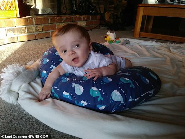 Đi siêu âm thấy xương con bị gãy, cha mẹ không ngờ đến điều khủng khiếp này xảy đến khi con chào đời-7