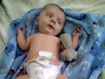 Đi siêu âm thấy xương con bị gãy, cha mẹ không ngờ đến điều khủng khiếp này xảy đến khi con chào đời