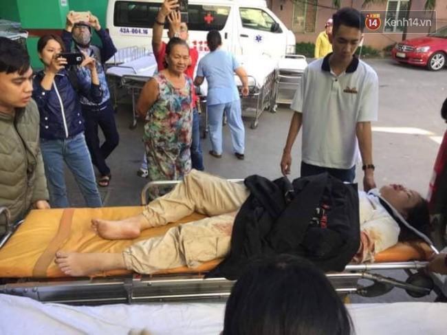 Cánh tay đứt lìa của nữ sinh trong vụ tai nạn xe khách trên đèo Hải Vân đã được nối lại thành công-2
