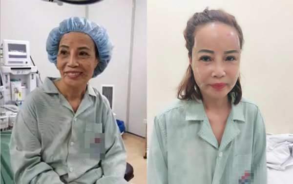 Bơm mỡ vào mặt như cô dâu Cao Bằng 62 tuổi: Có thực sự cải lão hoàn đồng?-3