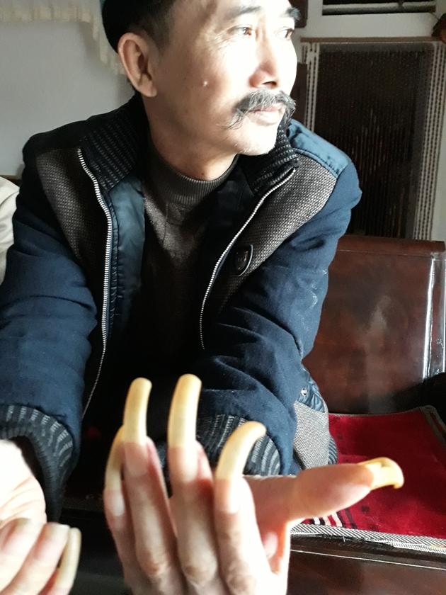 Người đàn ông bị vợ nhốt trong chuồng cọp hơn 3 năm ở Thanh Hóa-2