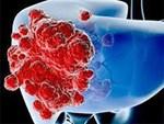 Người Việt bị ung thư gan nhiều thứ 4 thế giới-2