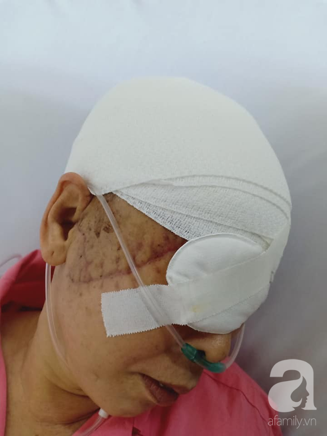 Theo con vào Bình Dương làm mướn, người phụ nữ bị máy kéo sợi bún lóc nát da đầu, cán thủng mắt thương tâm-4