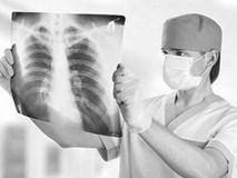 Căn bệnh ung thư gây tử vong hàng đầu